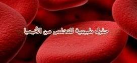 حلول طبيعية قد تخلص المرأة من الأنيميا (فقر الدم )