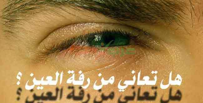 رفة العين ما هي أسباب رفة العين وهل هي مرض يستدعي العلاج