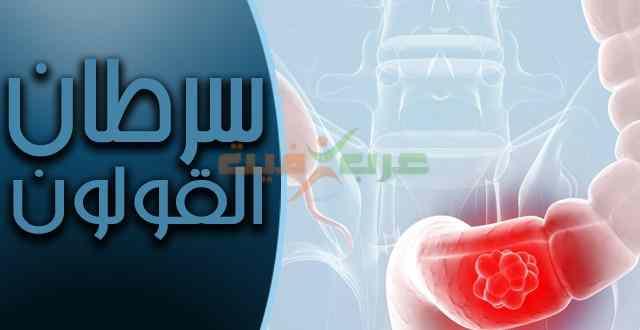 سرطان القولون .. أسبابه وأعراضه وعلاجه والوقاية منه