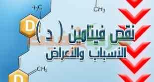 نقص فيتامين د .. الأسباب والأعراض