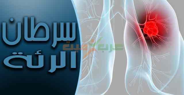 سرطان الرئة .. الأعراض والأسباب