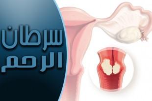 سرطان الرحم .. أعراضه وأسبابه والوقاية منه