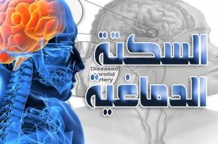 السكتة الدماغية .. العوامل المسببة والوقاية والمضاعفات